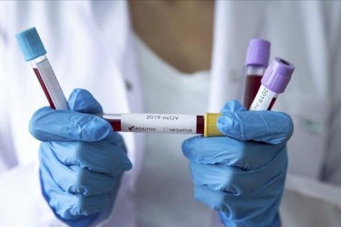 Yeni Koronavirüs (2019-nCov) Hakkında Bilgilendirme