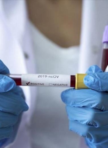 Yeni Koronavirüs (2019-nCov) Hakkında Bilgilendirme,